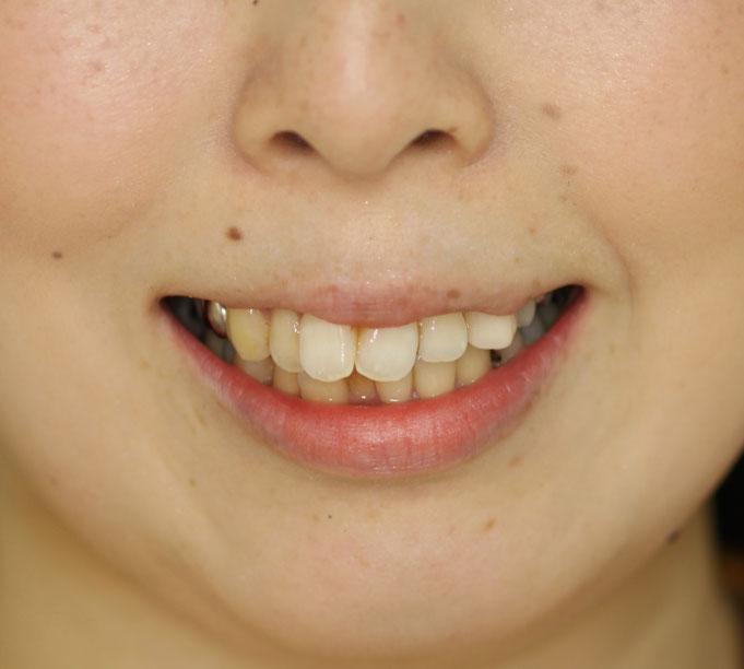 歯並びと唇