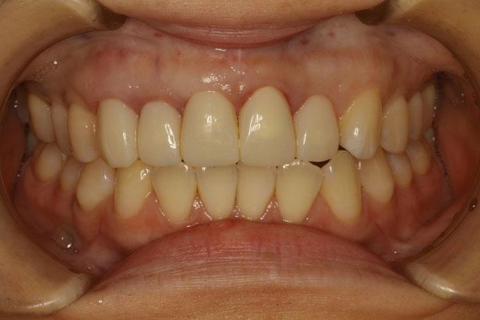 歯ぐきの再生治療後の状態。