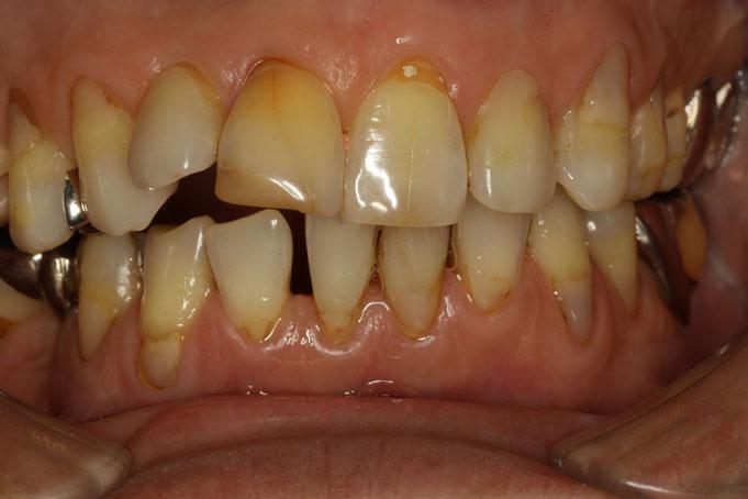歯茎の位置を変えずに審美歯科