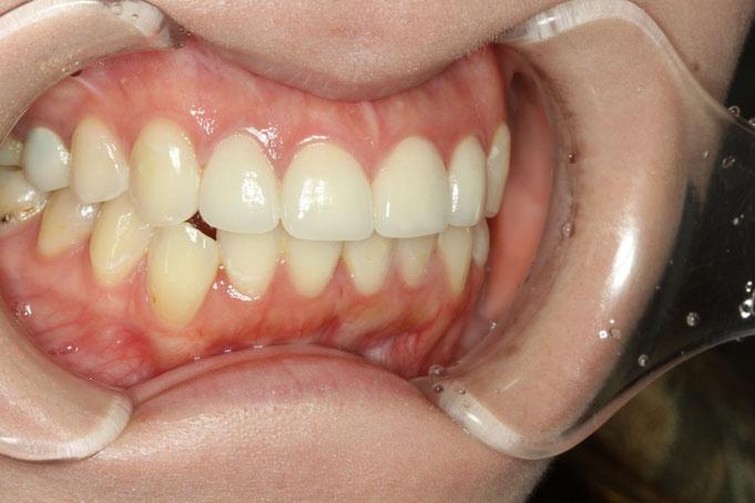 前歯を審美歯科で治療しています。前歯の大きさを小さく、歯を並べた形にしています