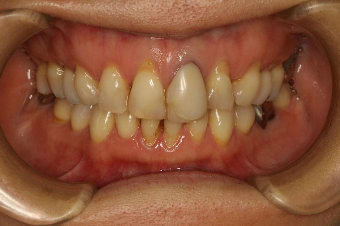 歯茎が下がって長くなってしまう