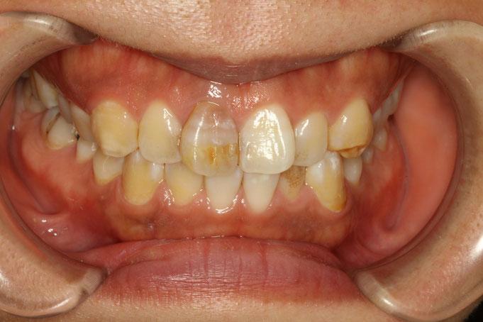 変色歯の治療前