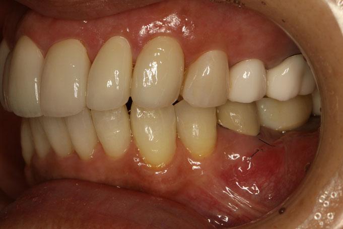 変色歯の治療