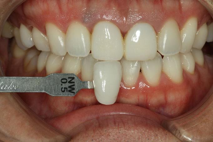 ホワイトニングと審美歯科