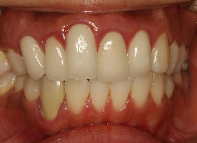 歯の長さを短くする審美歯科治療