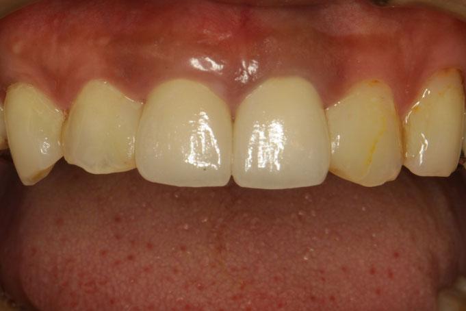 片方の差し歯が長くて、左右の差し歯の長さがちがうケース 治療後