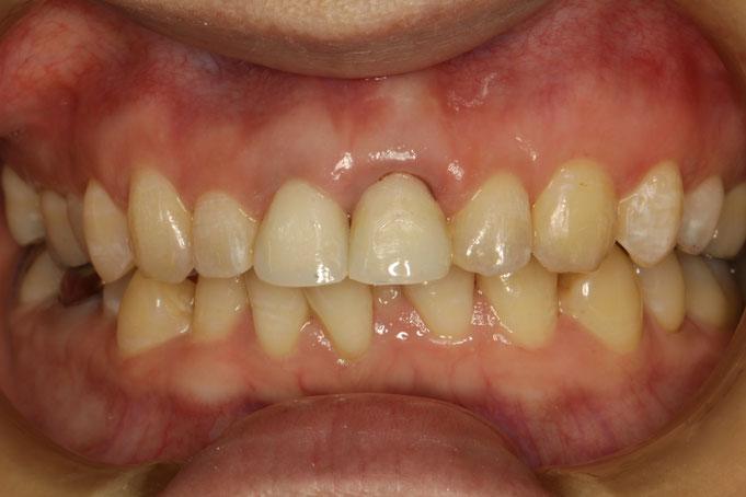 差し歯の長さが左右で異なる方の審美歯科治療