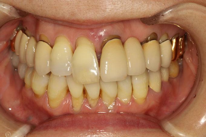 歯周病で歯茎が下がってしまた方のための審美歯科治療