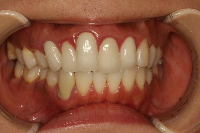 出っ歯を審美歯科で治療された場合の失敗例。
