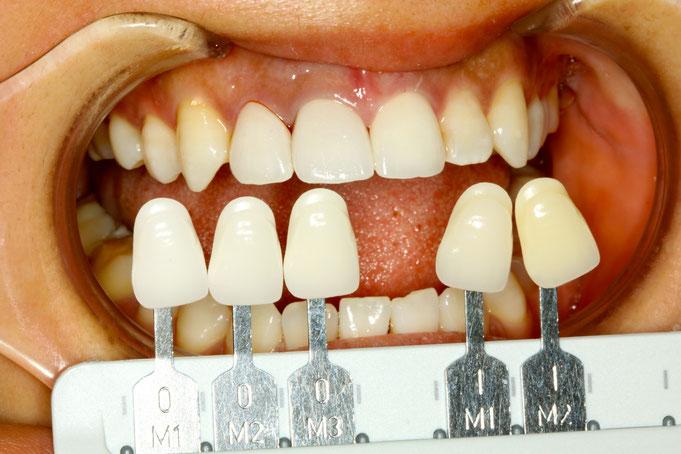変色歯の色合わせ
