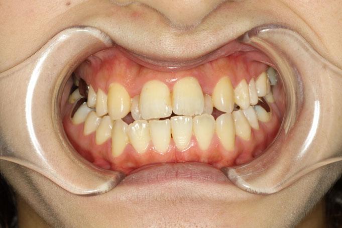 前歯の歯並びを審美歯科で治療