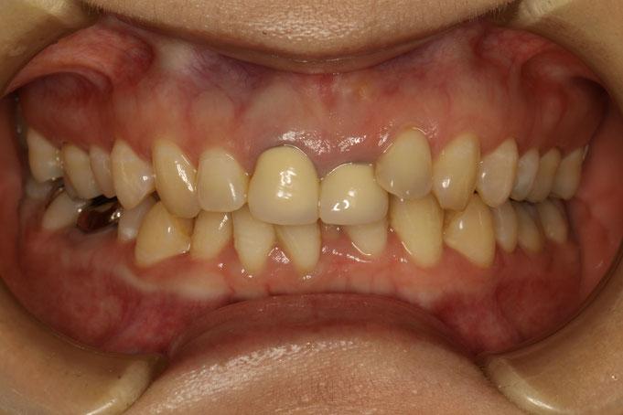 差し歯の長さが左右で異なる方