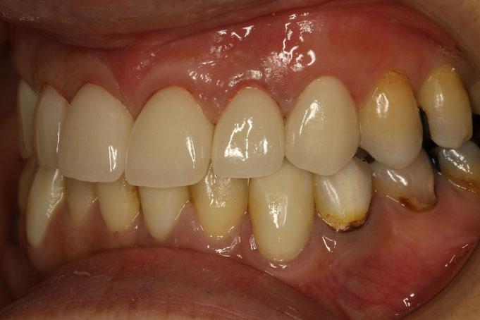 差し歯が出っ歯