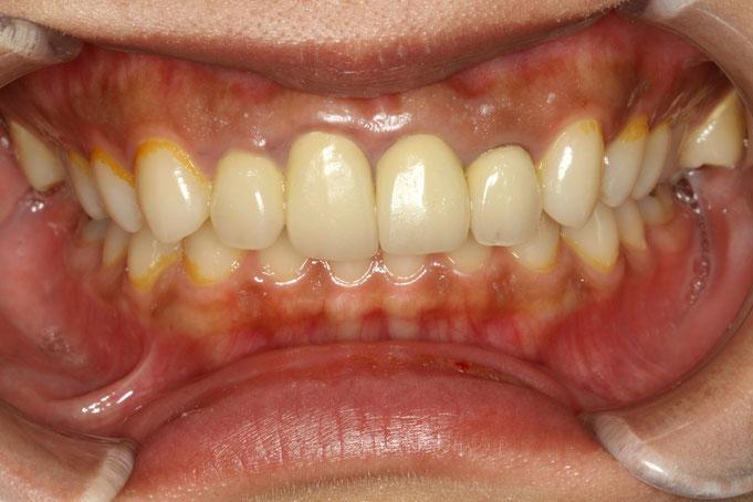 歯の大きさ