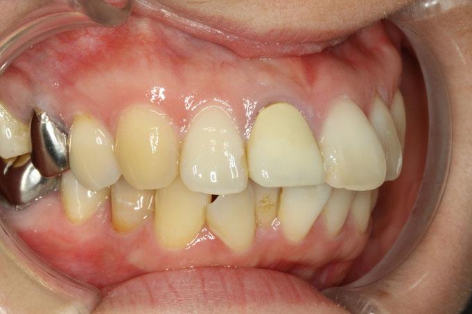 出っ歯の審美歯科治療