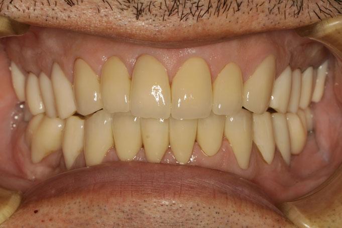 全体的にオールセラミックで審美歯科治療