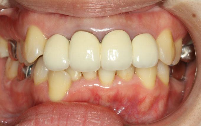 歯の透明感を増すことで、落ち着いた感じに見えます
