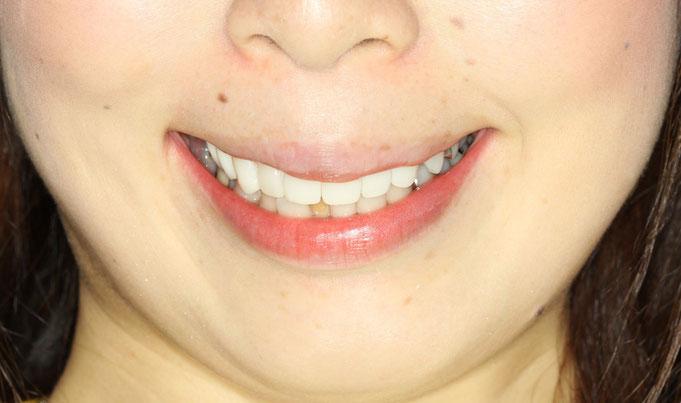 歯並びと唇の位置