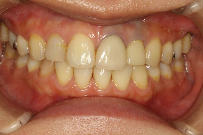 古い差し歯