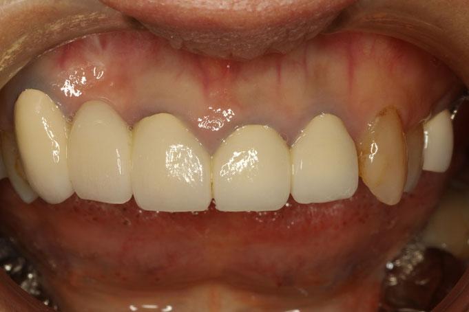 歯ぐきの審美歯科治療前