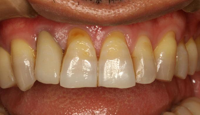 歯茎が下がった時の審美歯科治療