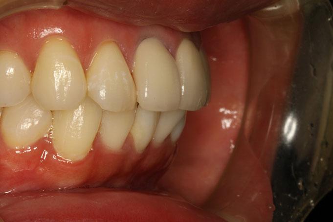出っ歯のオールセラミック治療