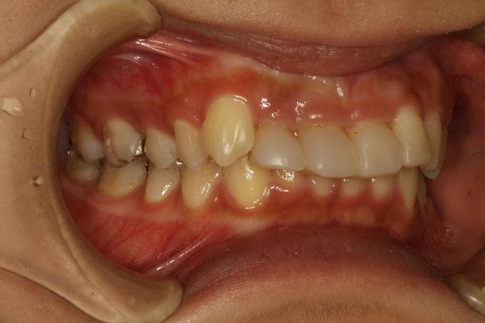 オールセラミックと歯茎