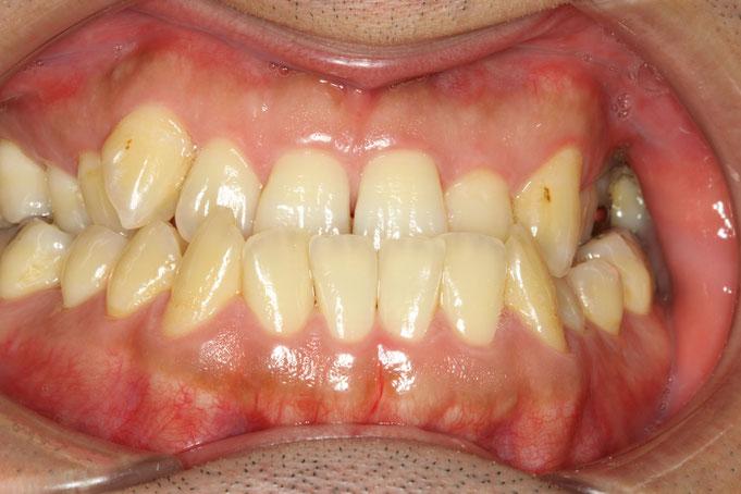 噛み合わせを審美歯科で治療