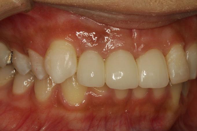 出っ歯で短い差し歯を審美歯科で改善したケース