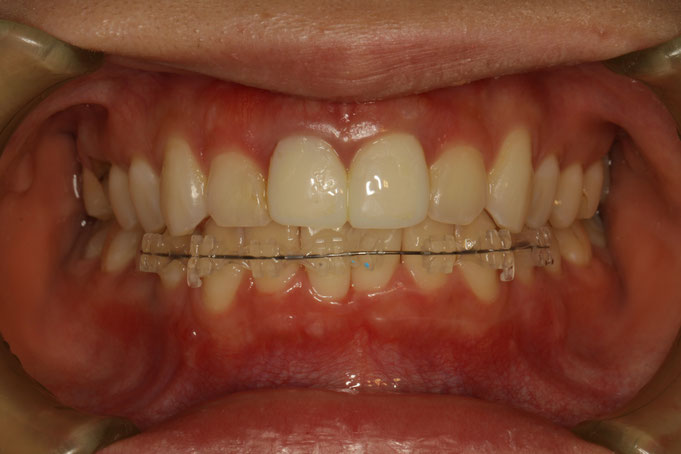 歯の大きさを小さくする審美歯科治療