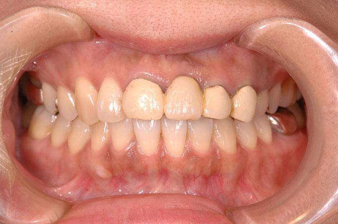 東京の銀座しらゆり歯科 審美歯科治療