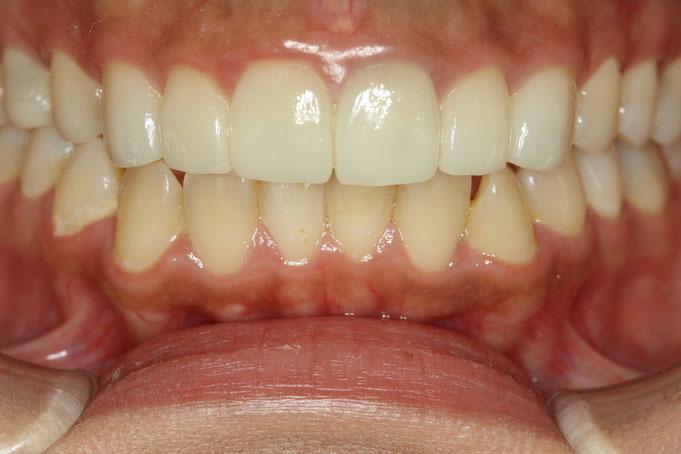審美歯科治療後のメンテナンス方法