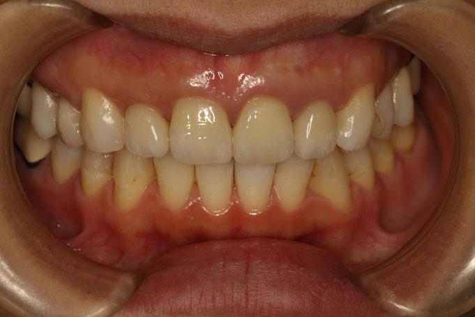 差し歯の歯茎を回復させた状態