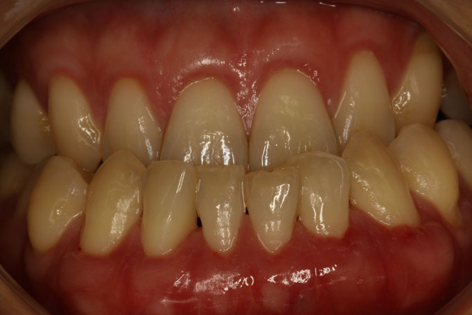 歯茎が下がったときの歯科治療