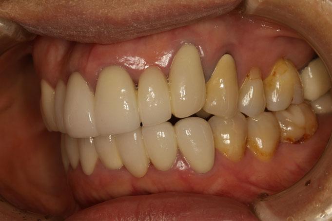 下がった歯ぐきに合わせてセラミックを入れたケース