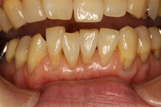 歯茎が下がってしまっている部分お歯石をお取りした場合に知覚過敏が出てしまうことがあります。