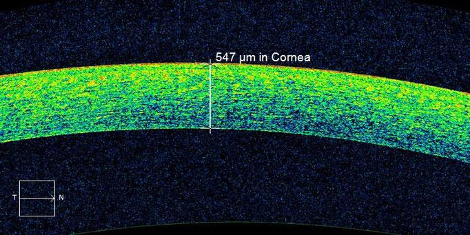OCT-Schnittbild durch die Hornhaut zur Messung der Hornhautdicke