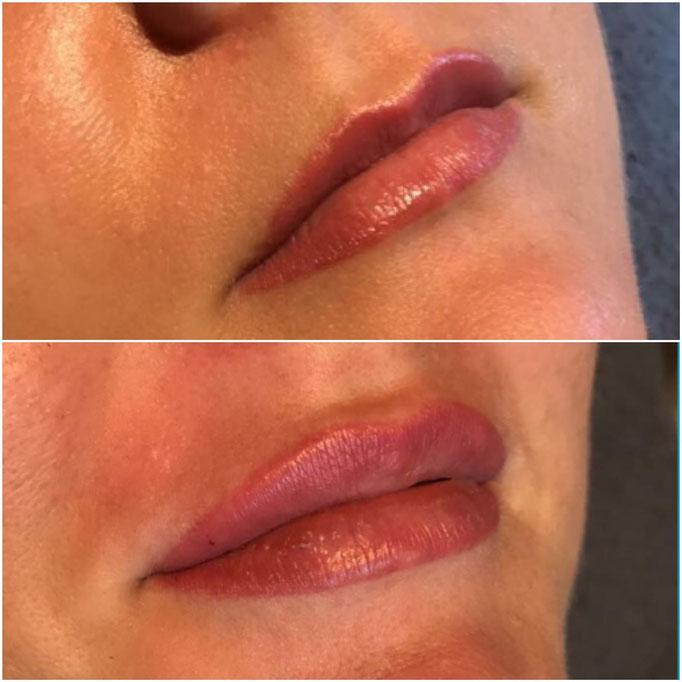 Lippenunterspritzung natürlich sofort nach einer Behandlung