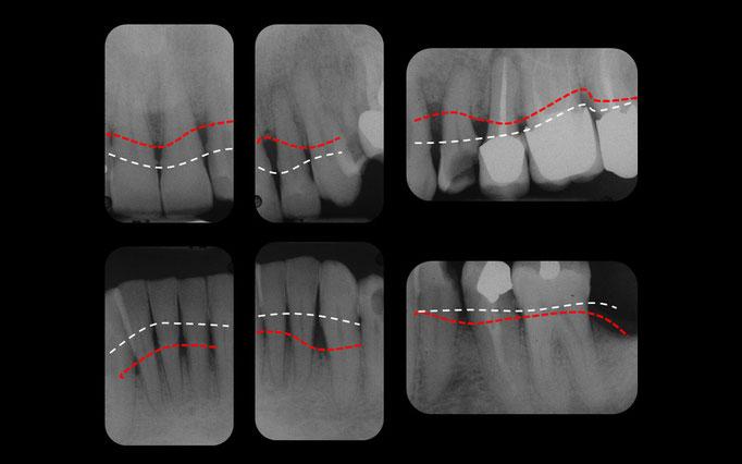 Radiographie de la parodontite chronique côté gauche. En blanc, la position normale de l'os autour des dents. En rouge, la position pathologique de l'os en raison de la parodontite.