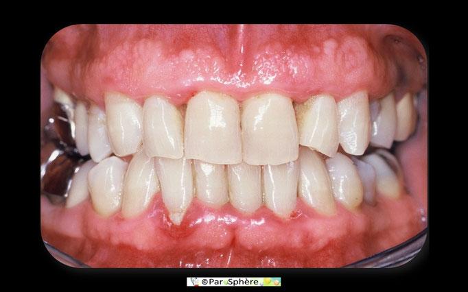Vue clinique d'une parodontite chronique.