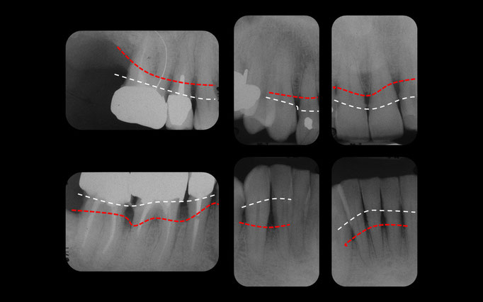 Radiographie de la parodontite chronique côté droit. En blanc, la position normale de l'os autour des dents. En rouge, la position pathologique de l'os en raison de la parodontite.