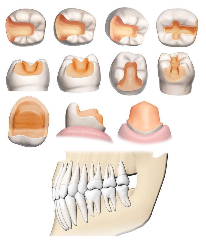 インプラント歯