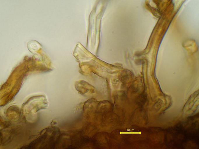 Bild 24 Rhizoiden auf den Zellen der Rippe der Blattscheide