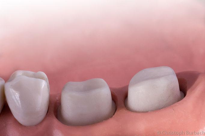 zur Kronenaufnahme präparierte Zahnstümpfe