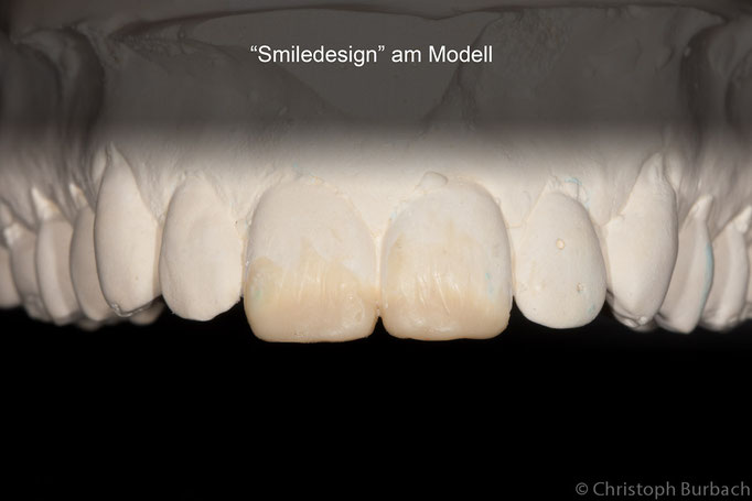 """smiledesign"" am Modell"