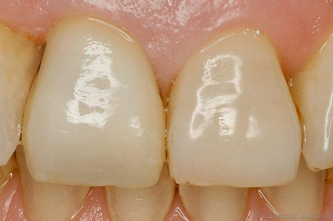 die neue Zahnkrone