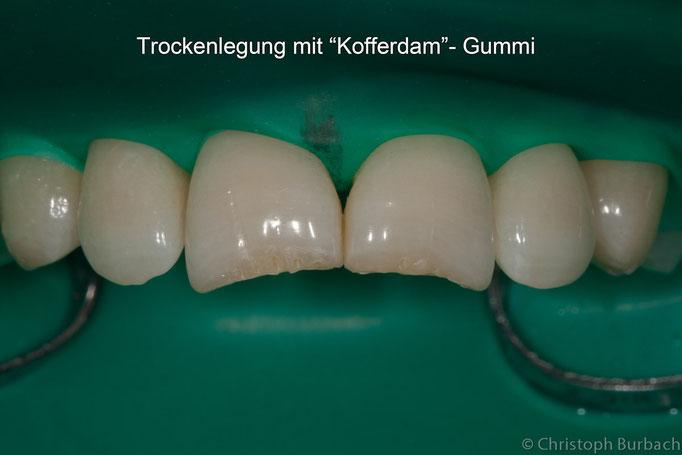 Isolierung der Zähne mit Kofferdam