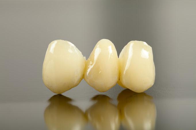 Brücken wenn mehrere Zähne fehlen