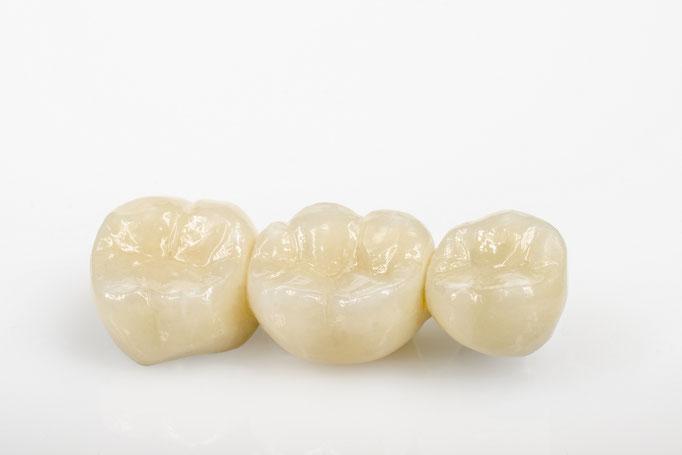 Zahnbrücken aus Vollkeramik