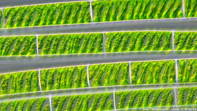 Chloroplasten (Organzellen) einer Grünalgenart (Spirogyra sp.).
